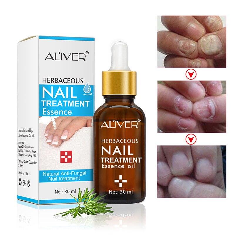 Liquide de traitement des ongles naturel Anti-fongique Essence de traitement des ongles herbacé MH88