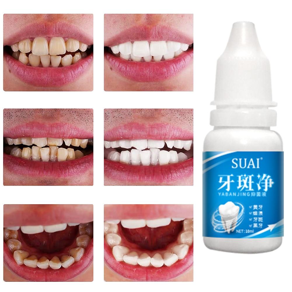 Эссенция для отбеливания зубов, гигиена полости рта, отбеливание зубов, удаление зубного налета, уменьшение зубных пятен, уход за полостью р...