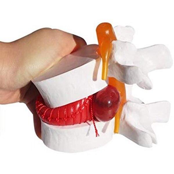 1 pieza de modelo anatómico de la columna Lumbar de la hernia del disco Lumbar Color blanco TN88