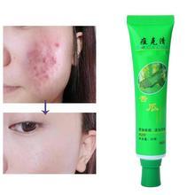Gesicht Hautpflege Akne Creme Öl Kontrolle Akne Produkte Feuchtigkeitsspendende Creme Gesicht Akne Gesicht Schönheit Aloe Haut Entfernen Vera Pflege cre K3G0