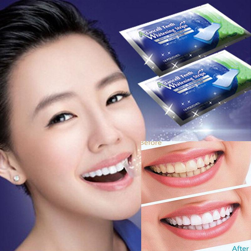 2Pair Professional Oral Care Hygiene Teeth Teeth Whitening Strips Gel Dental Bleaching Tooth Whitening Bleach Whiten Tools