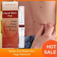 3ml liquid genital wart treatment papillomas removal of warts skin tags removing against moles remover anti verruca remedy
