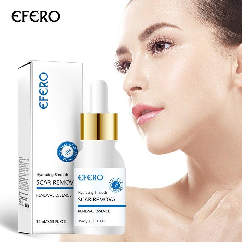 EFERO Face Cream Whitening Cream Acne Removal Essence Serum for Face Skin Care Pimple Spot Acne Trea