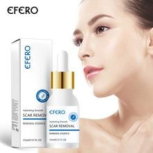 EFERO Face Cream Whitening Cream Acne Removal Essence Serum for Face Skin Care Pimple Spot Acne Trea