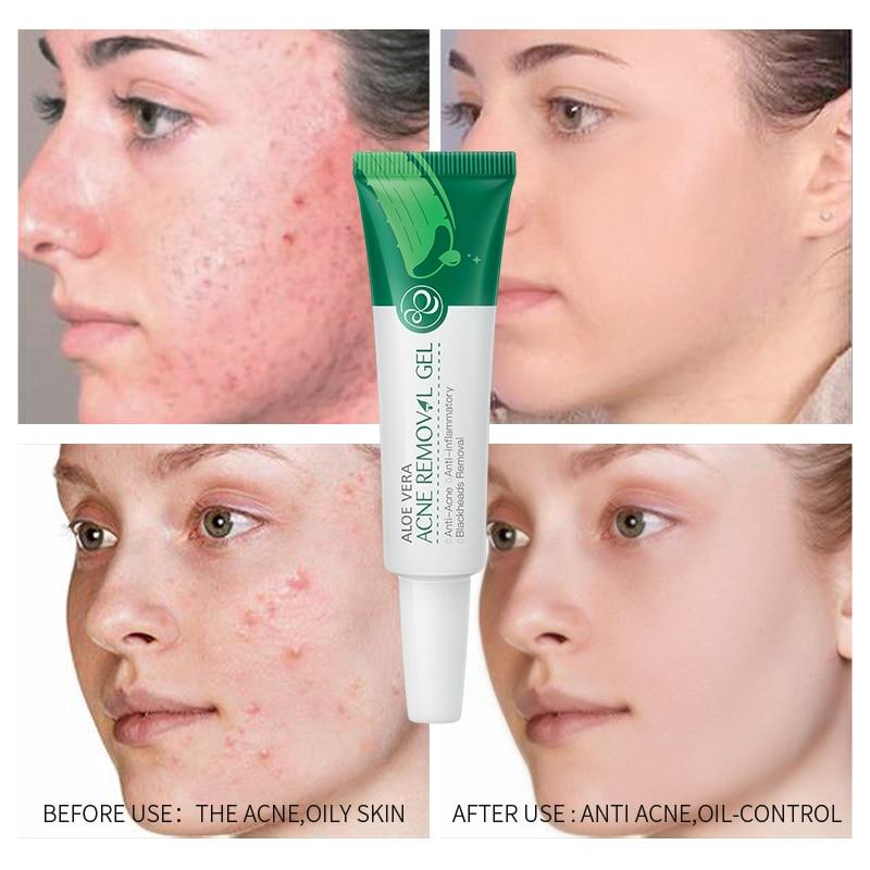 LAIKOU Aloe Vera Gel para el acné esencia para el rostro de ácido hialurónico Anti-Acné acné de Control de aceite reparación crema calmante tratamiento enrojecimiento de la piel