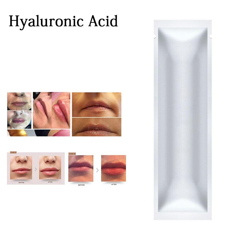 2ml 4ml 8ml 10ml lábios ácido hialurónico com caixa de ligação cruzada para caneta hialuron