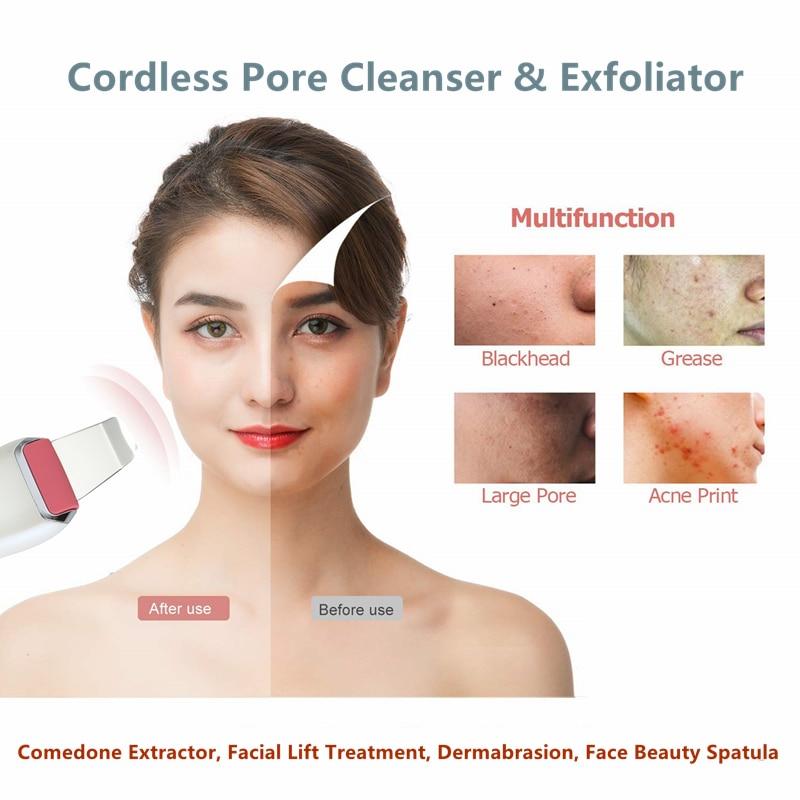Купить с кэшбэком Ultrasonic Skin Scrubber Deep Face Cleaning Machine Peeling Shovel Facial Pore Deep Cleaner Face Skin Care Lift Machine