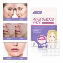 24pcs Skin Tag Remover Pimple Master Mask Patch Invisible Acne Stickers Patch Skin Acne Concealer Ma