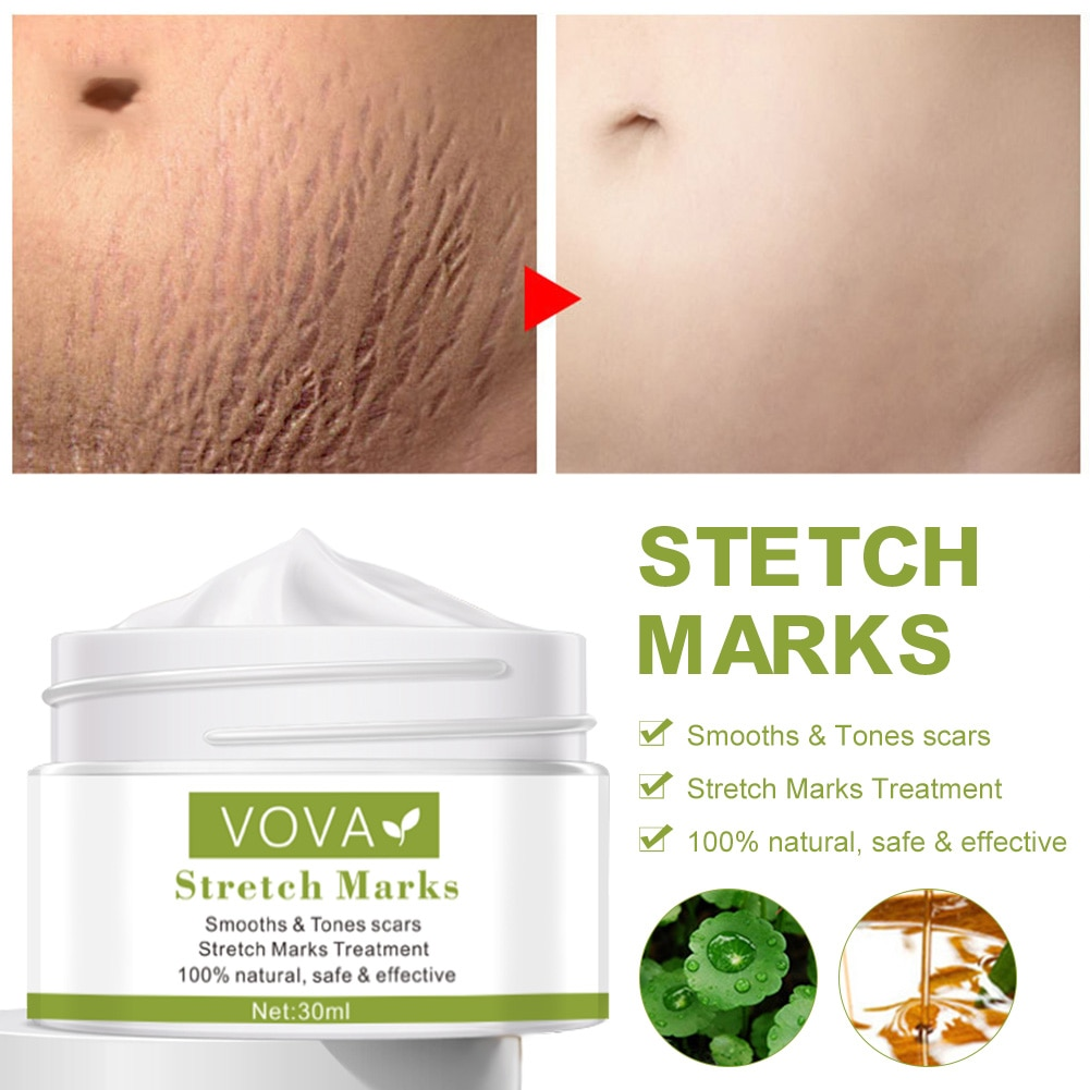Effective Remove Pregnancy Scars Acne Cream Stretch Marks Treatment Maternity Repair Anti-Aging Anti-Winkles Firming Body Creams недорого