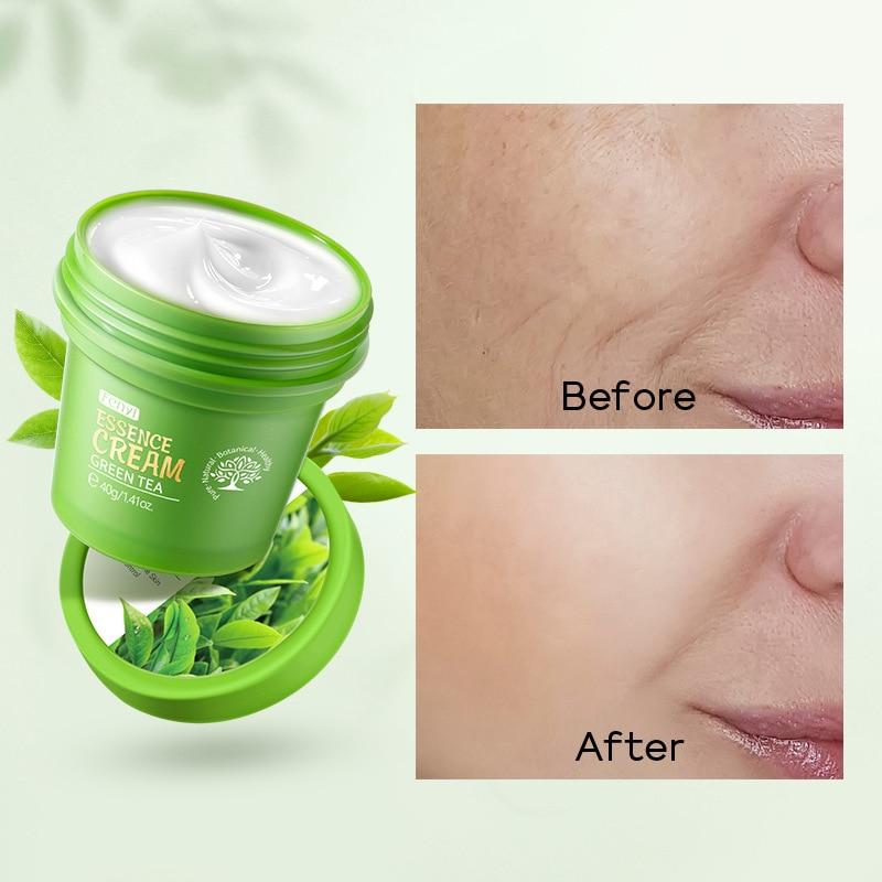 FY Green Tea Face Cream Anti Wrinkle Nourishing Acne Treatment Oil Control Facial Skin Care Moisturizer Whitening Repair Cream недорого
