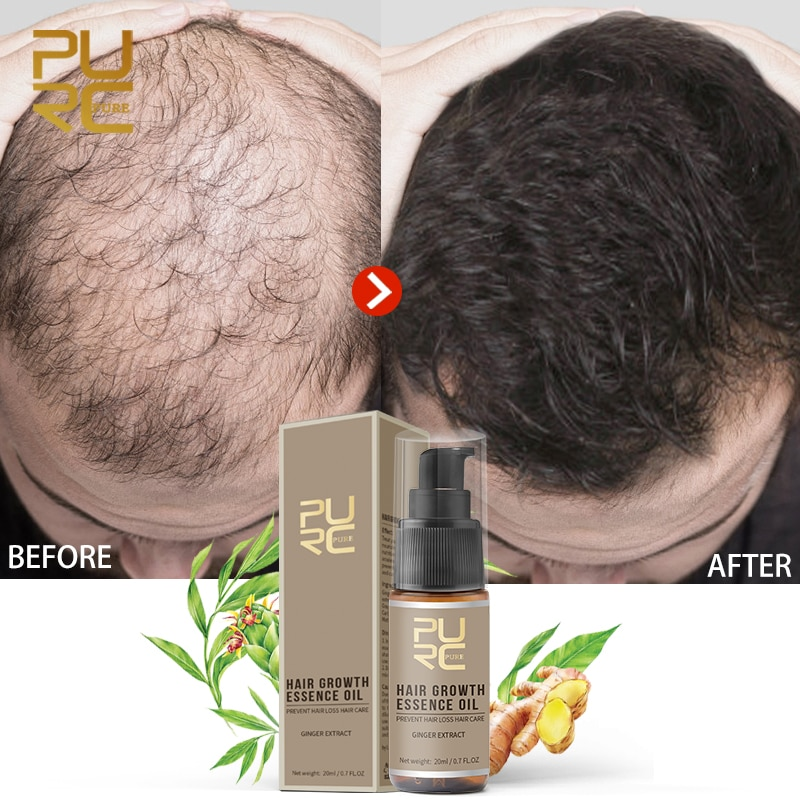 PURC Hair Growth Serum Oils Fast Hair Growth Products Hair & Scalp Treatments for Thinning Beauty Ha