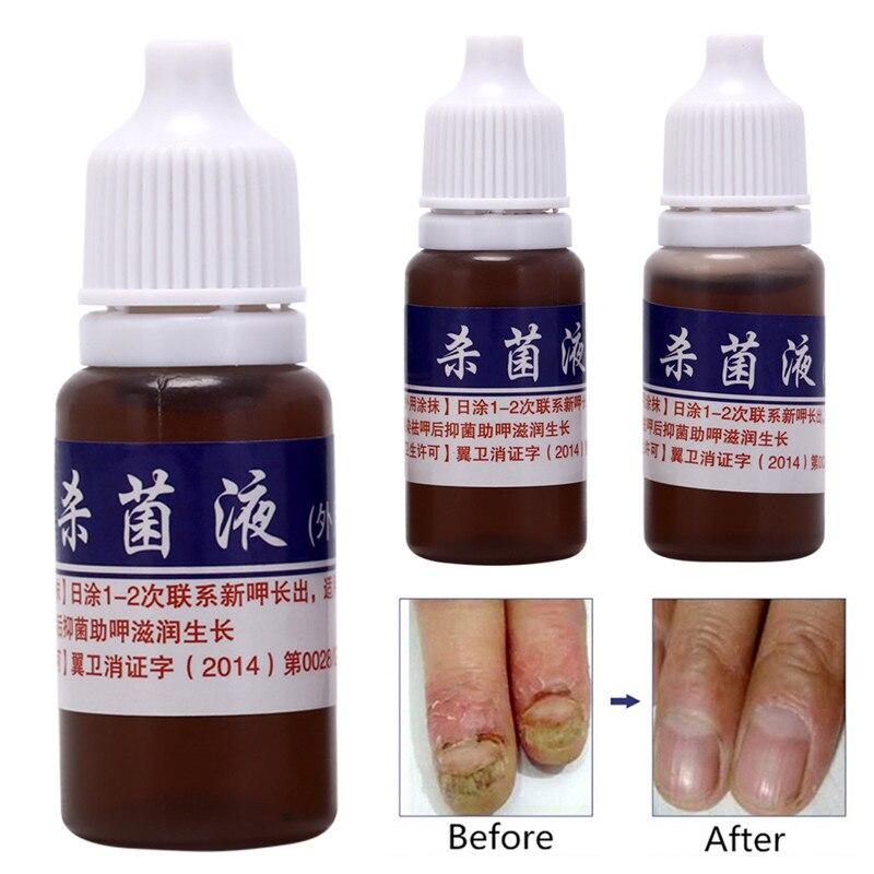 10ml Cuidado de la piel sana tratamiento de reparación de uñas líquido limpiador onicomicosis eliminar