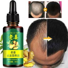 Ginger Hair Growth Essence 7 Days Germinal Hair Growth Serum Essence Oil Hair Loss Treatment Growth
