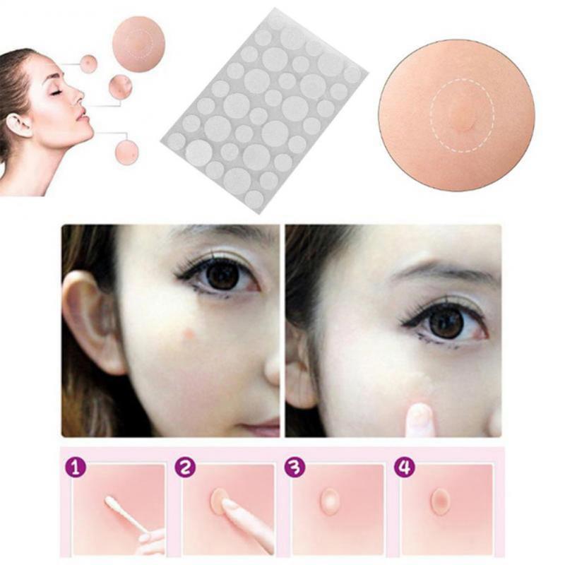 36 Uds./removedor de láminas, parches adhesivos para el acné, eliminador de etiquetas para la piel, eliminador de manchas, tratamiento de la piel, espinillas invisibles, adhesivos para el cuidado de la piel