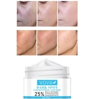 vova effective whitening freckle cream remove melasma acne spot brightening complexion moisturizing cream beauty skin care 30ml