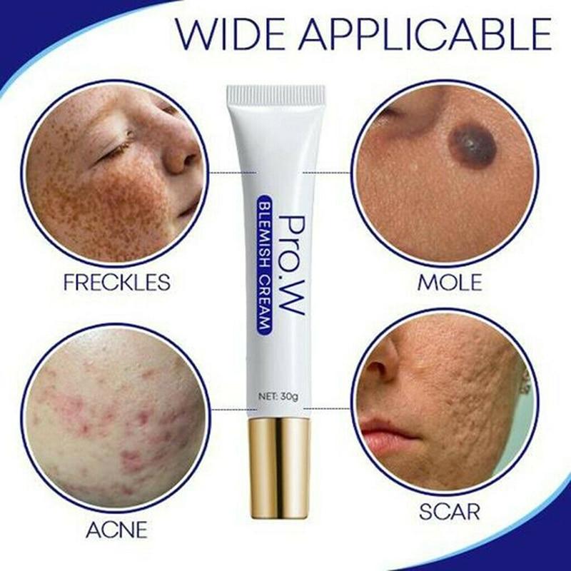 Pro.W Blemish Cream Freckles Acne Pimple Scar Dark Spots Removal Skin Whitening Brightening S55