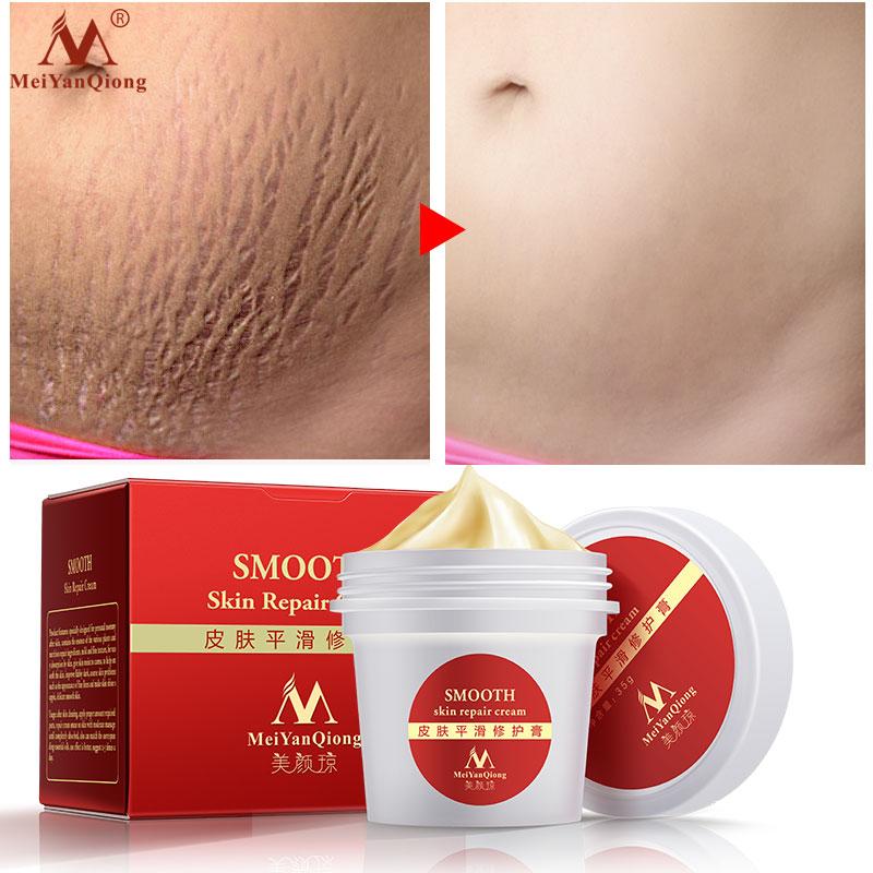 Smooth Skin Stretch Mark Skin Cream Removes Maternal Skin Repair Body Cream Removes Postpartum Scar