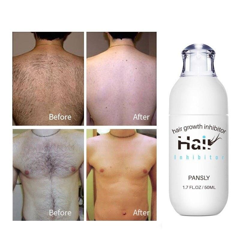 Hair Growth Inhibitor Hair Removal Repair Nourish Effective Herbal Permanent Liquid Body Leg Armpit Hair Removal Repair Liquid