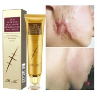 30g acne scar removal cream pimples stretch marks face gel remove acne smoothing whitening moisturizing body skin care aichun