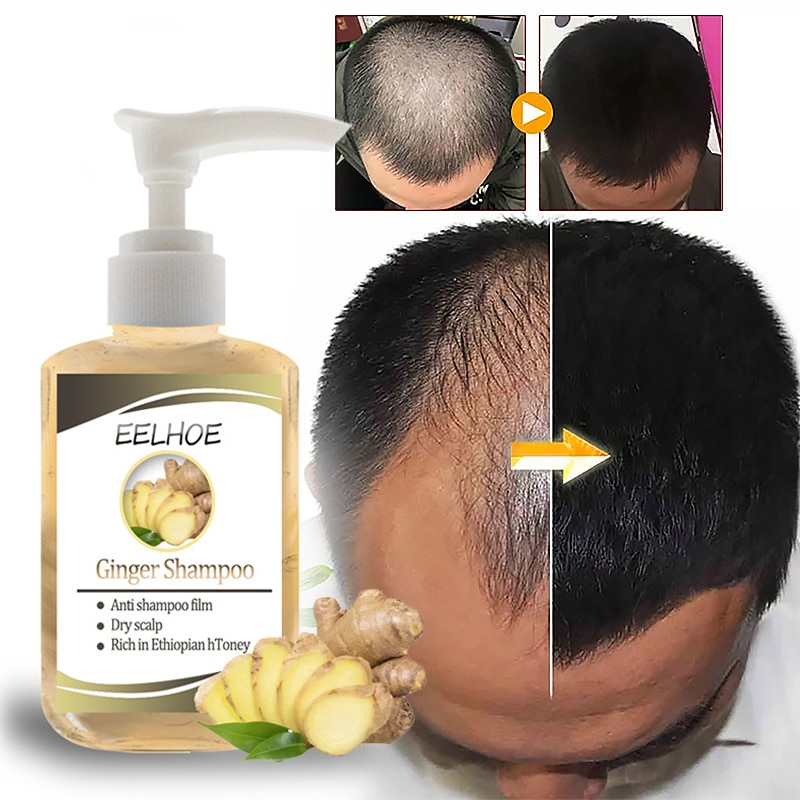 Eelhoe Ginger Anti-hair Loss Shampoo Anti-dandruff Refreshing Oil-control Straighten Damage Relieve Itching Hair Care TSLM1