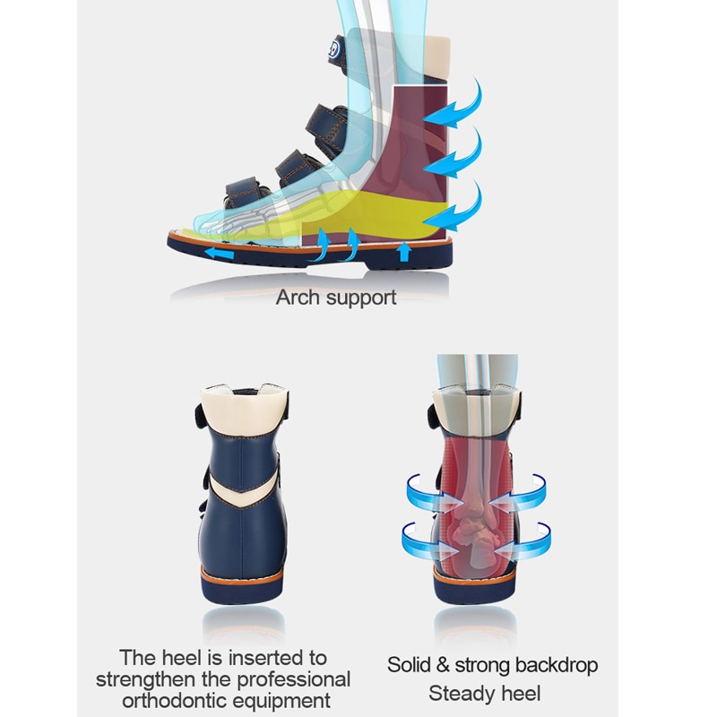 Baby Sandals Boys Children High Cut Straps Orthopedic Walking Shoes Professinal Clubfoot Footwear With Arch Support Insole enlarge