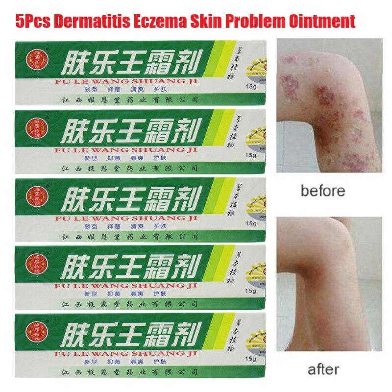 5 unids/lote Venta caliente 15g de la piel crema para la psoriasis Dermatitis Eczematoid Eczema ungüento tratamiento crema para la psoriasis venta al por mayor