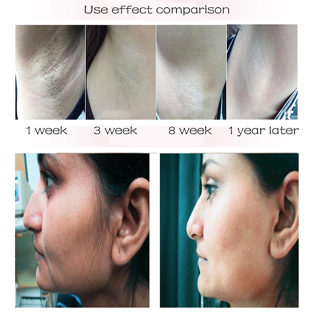 FIEEZOE 999999 Flash IPL Hair Removal Laser Epilator For Women Ice Painless Photoepilator Machine Permanent Depiladora Facial enlarge
