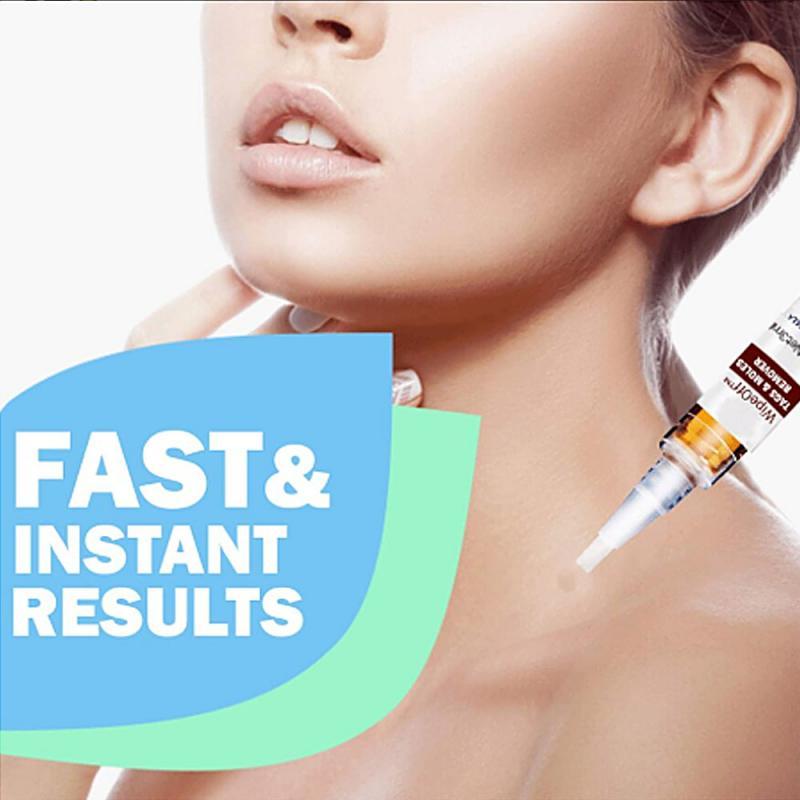Vloeibare Wart Removal Pen Veeg Tags Mollen Removergenital Wart Behandeling 3Ml TSLM1