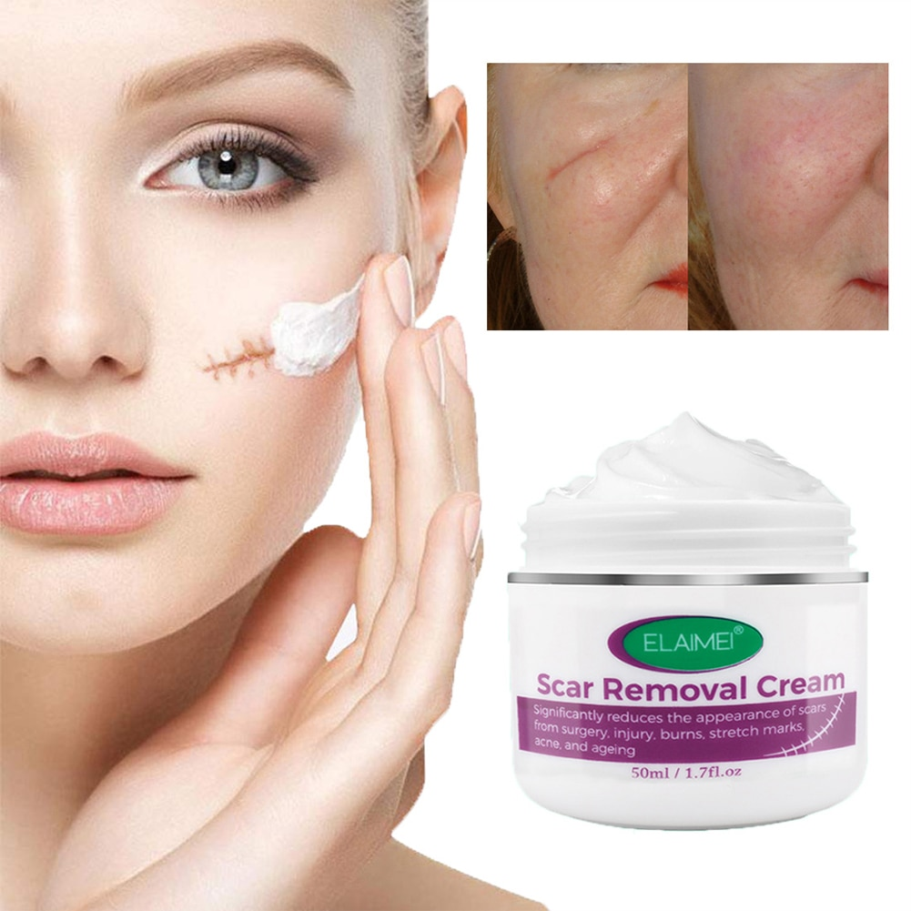 Scar Removal Cream Scar Cream for Acne Marks, Burns, Stretch Marks, Surgical Scars Promote New Skin Growth Scars Treatment недорого