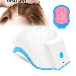 Foyying Dispositivo de Terapia A Laser O Crescimento Do Cabelo Capacete Anti Perda de Cabelo Tratamento da Perda de Cabelo Anti Tampa de Promover O Crescimento Do Cabelo Massagem Equipm