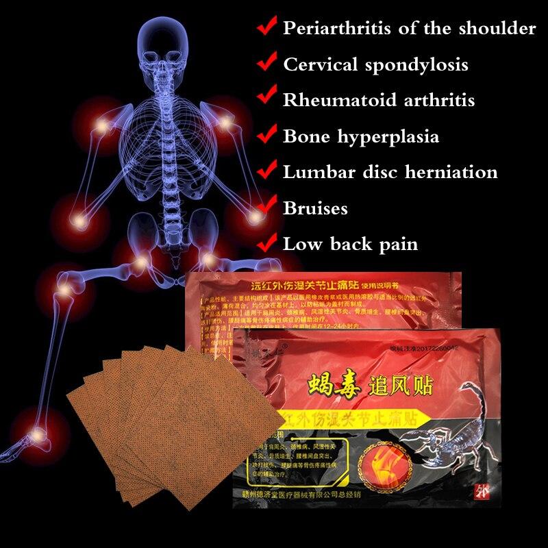 48 Uds veneno de escorpión de alivio del dolor parches ungüento juntas adhesivo yeso para artritis ortopédicos Capsicum yesos médicos C539