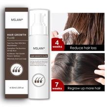MSLAM Hair Growth Essence Oil Anti Hair Loss Spray Serum Liquid  Hair Regeneration Treatment Solutio
