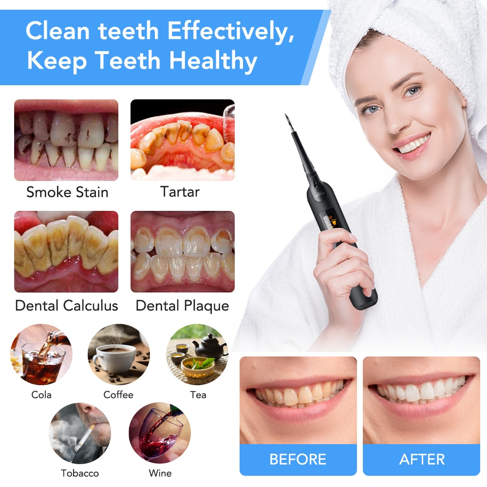 Electric Sonic tooth cleaner Household Oral Dental Scaler Portable Tooth Calculus Tartar Remover Whiten Teeth Cleaner LED Screen enlarge