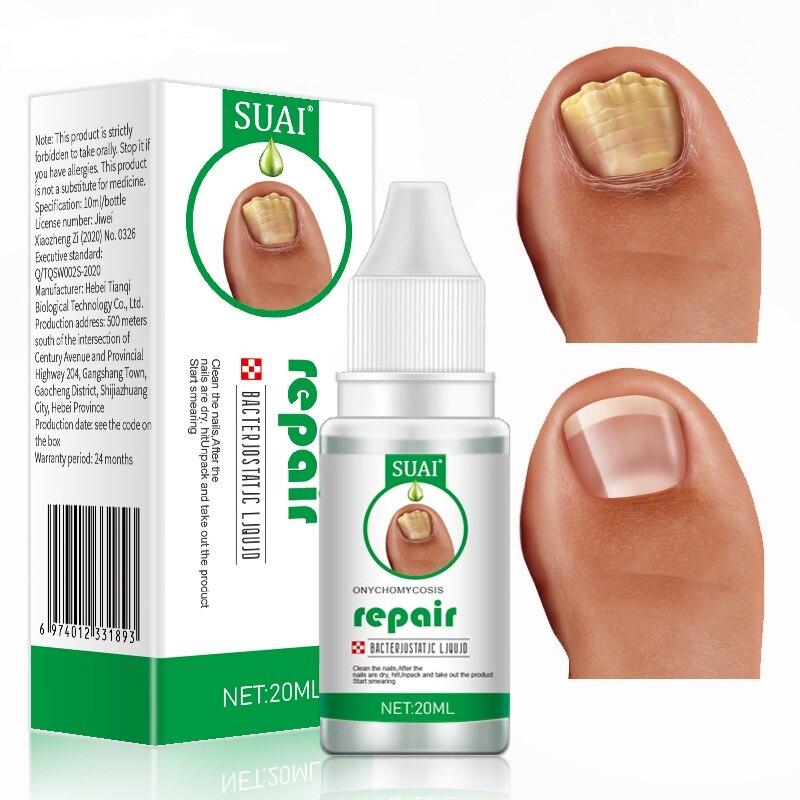 SUAI 20ML Nail Fungus Treatment Feet Care Essence Fungal Nail Foot Toe Repair Removal Gel Anti Infec