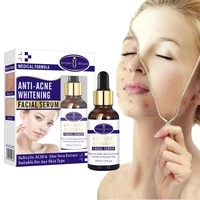 anti acne whitening facial serum fade acne dark spots moisturizing soothing face essence oil control shrink pores skin care 30ml