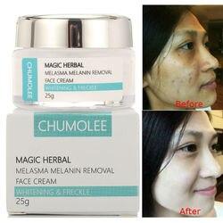 Chumolee forte clareamento creme de sarda remover melasma acne pigmento escuro manchas melanina espinha creme de rosto creme cuidados com a pele