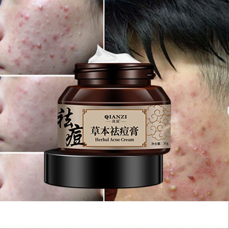 30mlNatural  Herbal Acne Removing Cream Acne Removing Marks Repair Pox Pits Anti-Acne Cream He