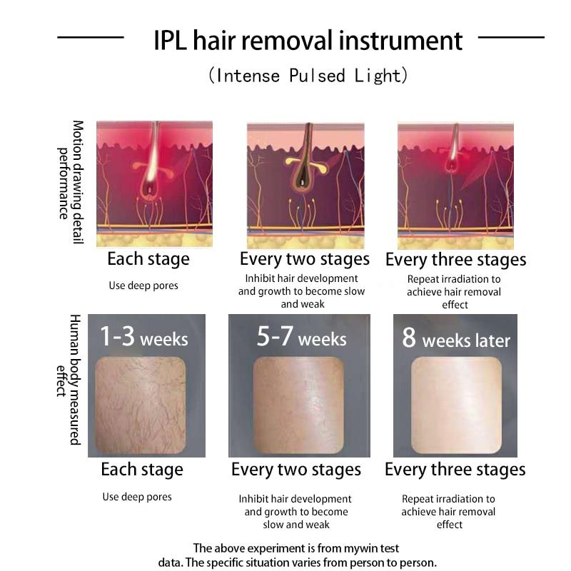999999 Flashes Ice Pack Laser Epilator Permanent IPL Photoepilator Hair Removal depiladora Painless Electric Epilator Dropship enlarge