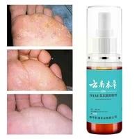 mint athletes foot spray remover foot odor anti sweat bacteriostatic herb antibacterial anti fungi moisture spray plant l7o3