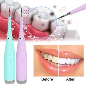 Electric Ultrasonic Sonic Dental Scaler Tooth Calculus Remover Cleaner Tooth Stains Tartar Tool Whiten Teeth Tartar Remove Tools