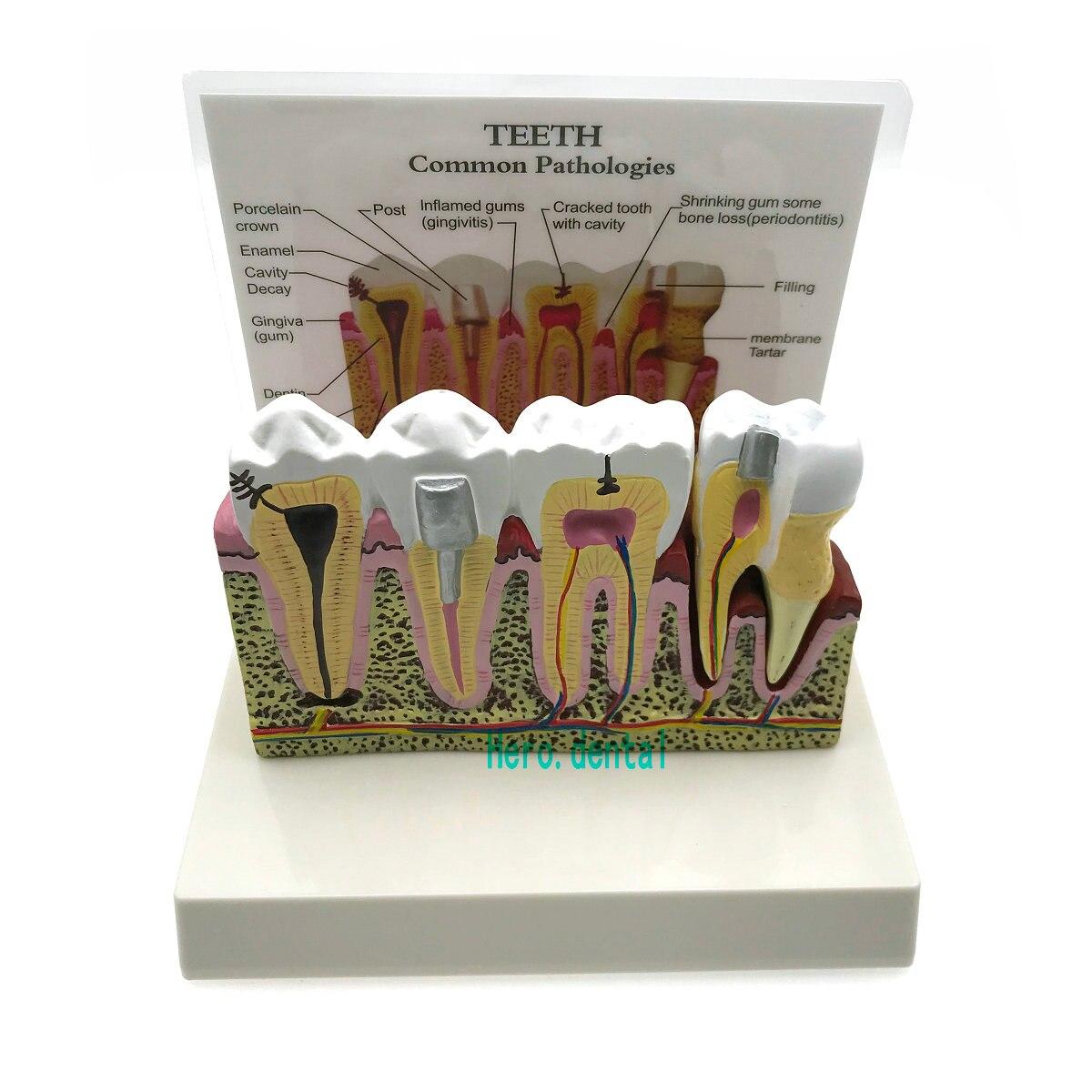 Зубные зубы анатомическая модель зубная анатомия модель зубов большой анатомии