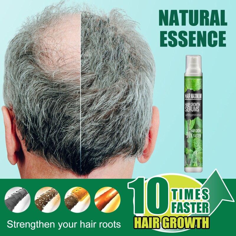 Hair Care Hair Growth Essential Oils Essence 10 TIMES Hair Fast Grow Spray Hair Loss Repair Nutrient
