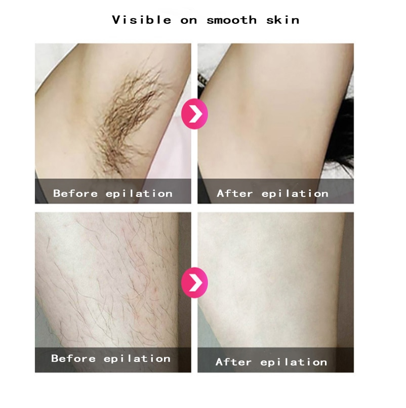 Epilator laser hair removal electric professional permanent IPL300000 flash photo women painless threading hair remover machine enlarge