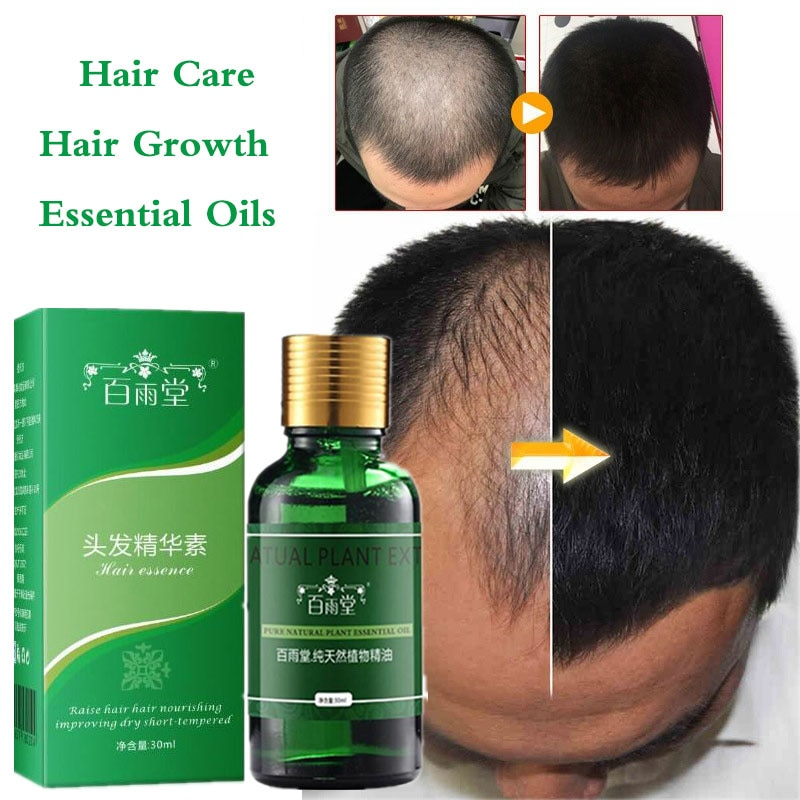 Hair Growth Essential Oils Essence Anti Hair Loss Products Health Care Beauty Faster Grow Dense Hair