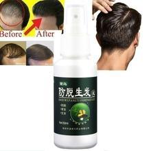 50ml gingembre cheveux traitement nutritionnel produits de perte de cheveux repousse Essence soin croissance cheveux pour cheveux rapide cheveux remède produit P9K3