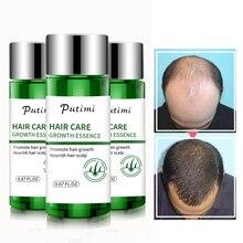 Putimi soin des cheveux Essence de croissance Anti perte de cheveux prévenir les soins de santé beauté Dense croissance des cheveux sérum produits pour femmes hommes 20ml