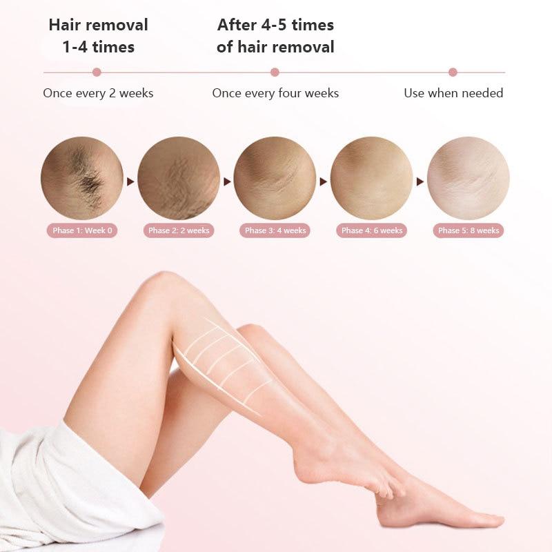 Electric Ipl Laser Hair Removal Machine Professional Body Laser Epilator for Women & Men Photoepilator Face Underarm Bikini Line enlarge