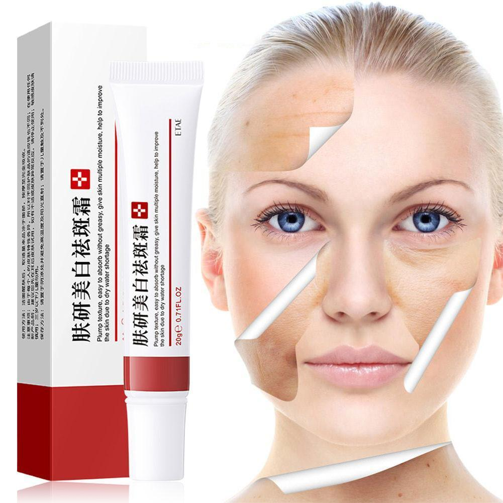 Effective Acne Removal Cream Treatment Fade Moisturizing Care Shrink Whitening Repair Spots Skin G4T8