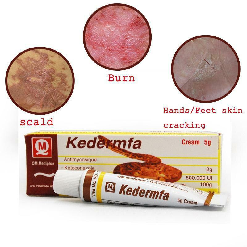 Hot Sale 5g Vietnam Kedermfa Snake Oil Hand Skin Face Care Cream For Burn Scald Skin Cracking Eczema