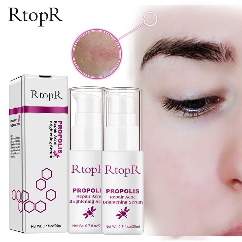 RtopR, Control de aceite de propóleo, reparación de suero de acné, limpieza de cicatriz de acné, suero de eliminación de contracción, tratamiento hidratante para el acné